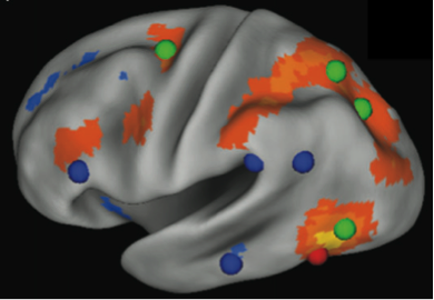 Figure 1: The left hemisphere of the brain. The VWFA (red sphere) is shown with parts of the brain that correlate with VWFA activity (orange regions). The VWFA functional connectivity pattern overlaps more with dorsal attention regions (green spheres) than reading-related regions (blue spheres). From Vogel et al. (2012).